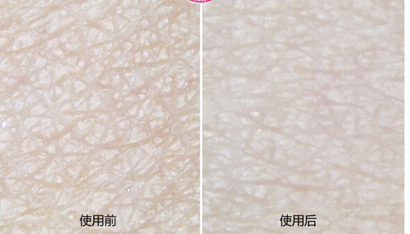 导出仪清洁使用前后肌肤对比图