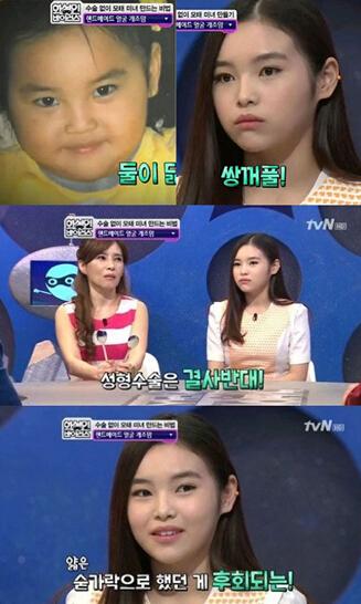 勺子按摩,韩国不动刀的脸型整容