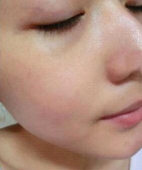 蒸脸器在卸妆中的作用