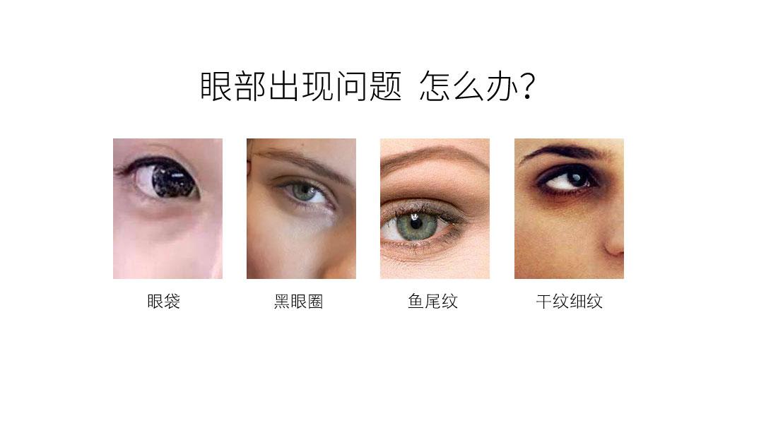 眼部问题如何解决?