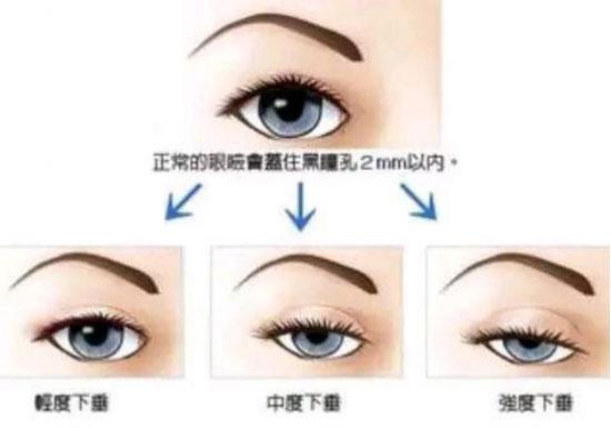 要延迟皮肤松弛,了解面部皮肤松弛的原因是第一步