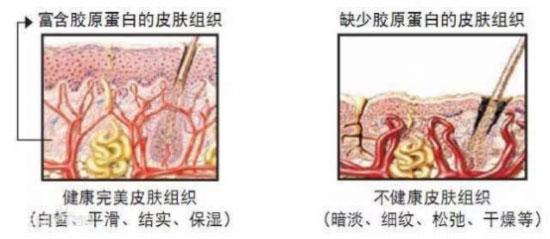 皮肤松弛最主要的原因在于胶原蛋白流失