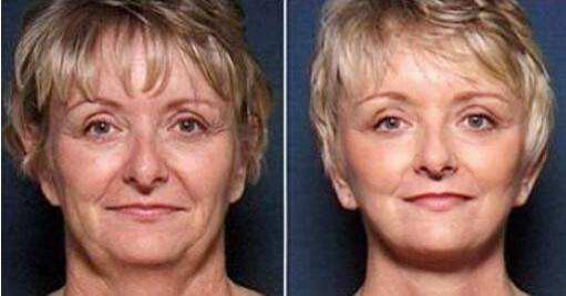 皮层与肌肉层的修护同样是保持面部肌肤健康的主要因素
