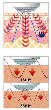 新恋爱时代沈画专业紧肤按摩器 美容仪 超声波离子导出导入仪